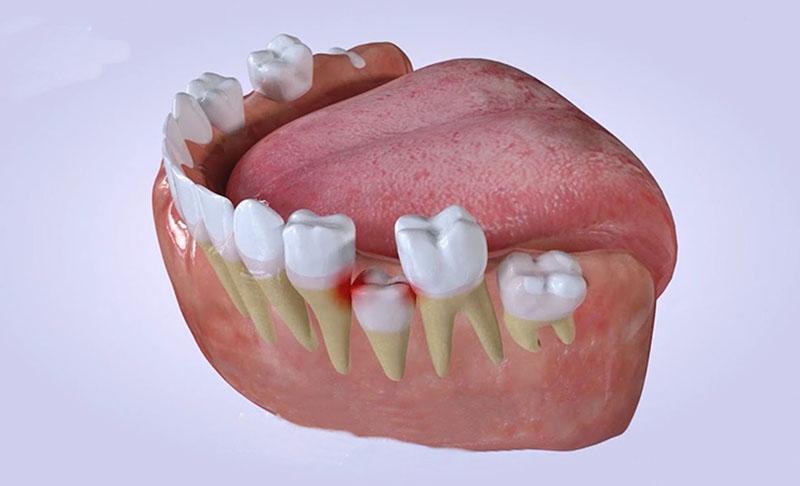 Răng sữa có vai trò quan trọng với trẻ nhỏ