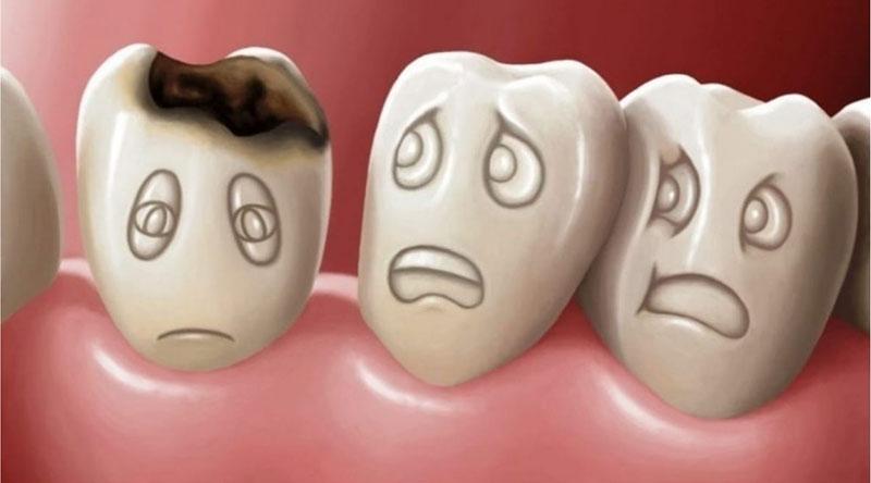 Nhổ răng sữa khi chiếc răng đó đã bị sâu