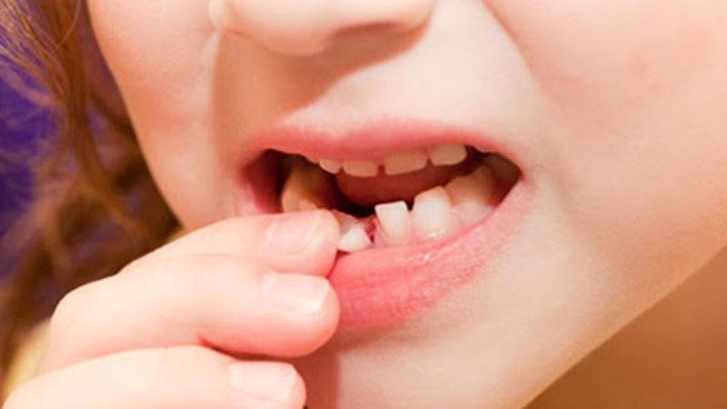 Răng sữa sẽ tự rụng nên sẽ rất nguy hiểm nếu cha mẹ tự ý nhổ răng