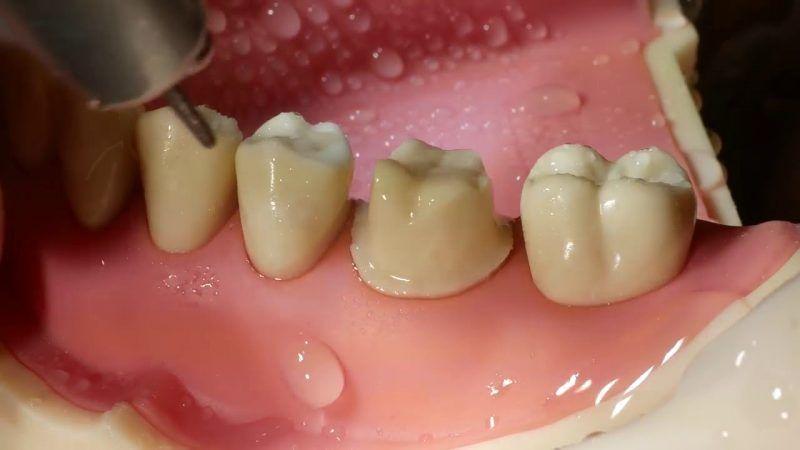 Việc mài cùi không đúng kỹ thuật khiến ê răng sau khi bọc sứ