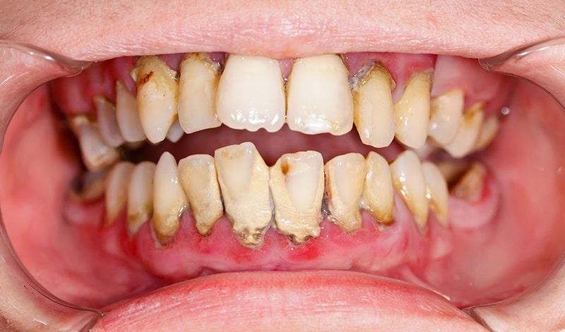 Viêm nha chu gây mất thẩm mỹ toàn bộ hàm răng