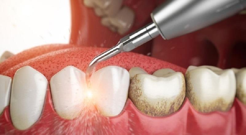 Các bác sĩ luôn khuyến cáo nên lấy cao răng định kỳ 6 tháng 1 lần