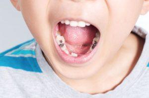 Sâu Răng Trẻ Em: Nguyên Nhân, Dấu Hiệu Và Cách Phòng Ngừa